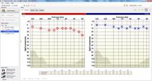 Tympanometer/audiometer progr