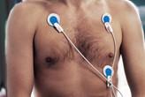 Ambu® BlueSensor EKG Elektrode Belastn