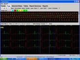 Ekg Holter LX  Basic programvare
